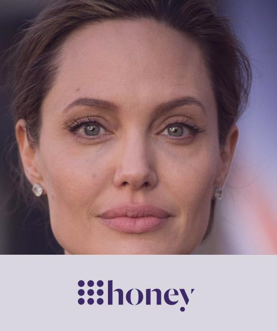 9-honey-thermage-eyes-sydney