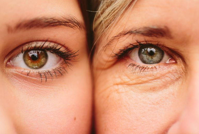 Thermage for Hooded Eyes and Sagging Eyelids