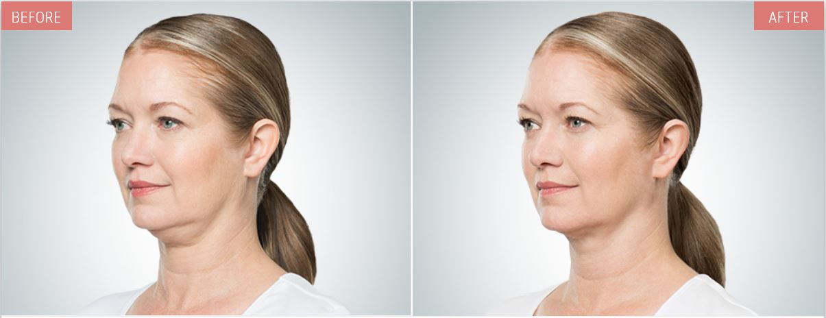 kybella-before-after