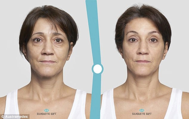 New age-defying procedure sees women using a thread and needle to