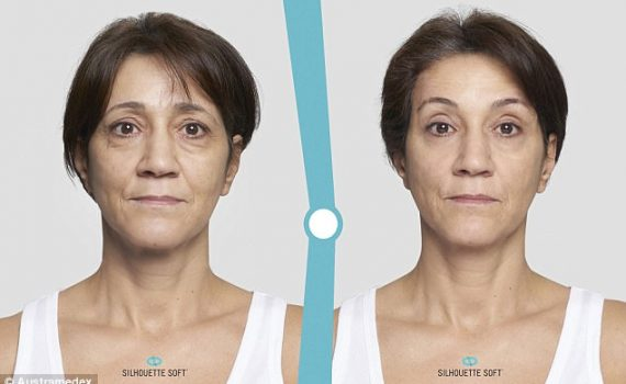 Silhouette Soft Thread Lift Before and After