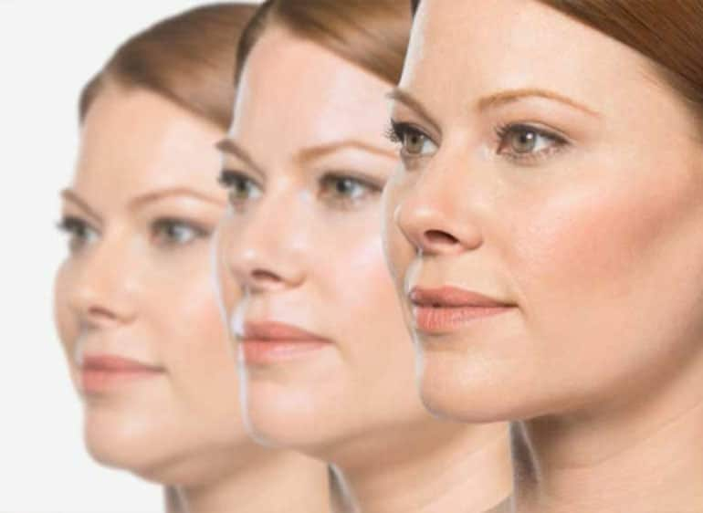 Kybella Melbourne - Double Chin Injections - Duquessa Clinic